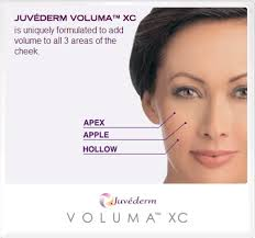 Juvederm Voluma XC   Aesthetics