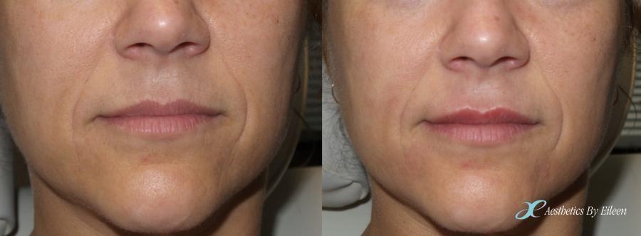 Restylane-L for fuller lips