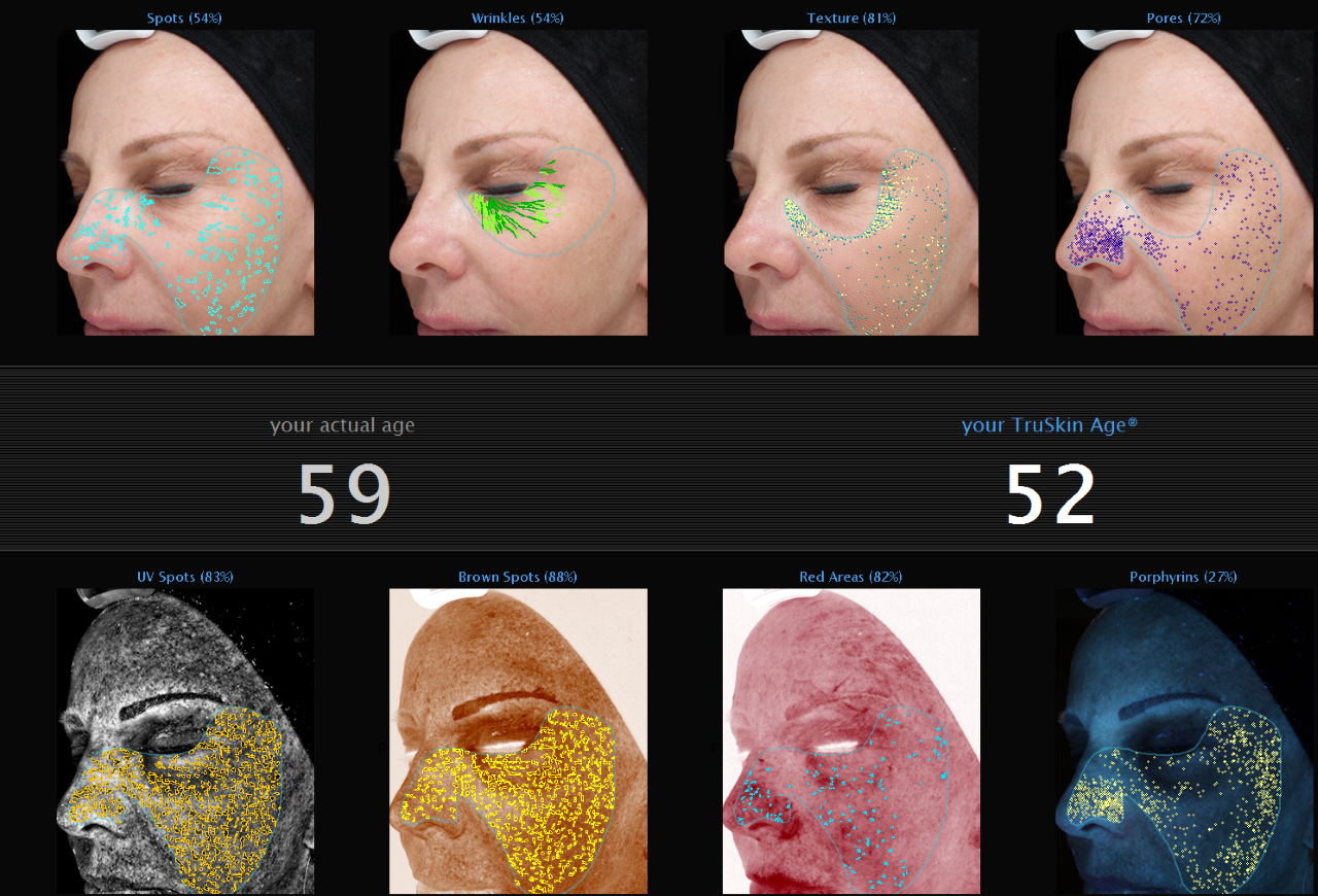 Visia Complexion Analysis for a side-by-side assessment over time.