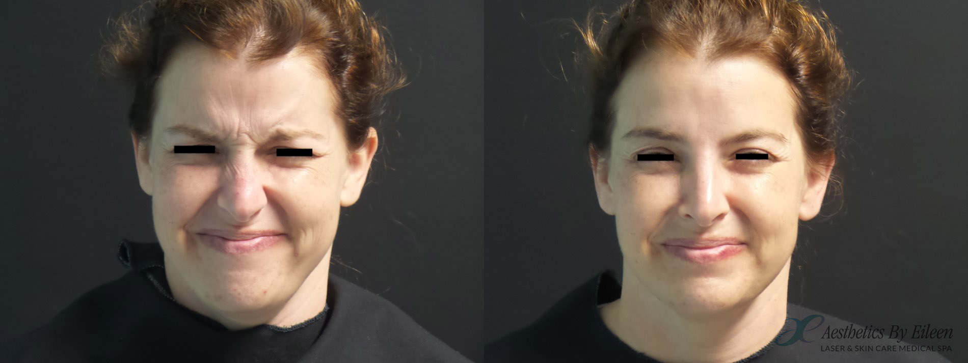 Dysport before and after results
