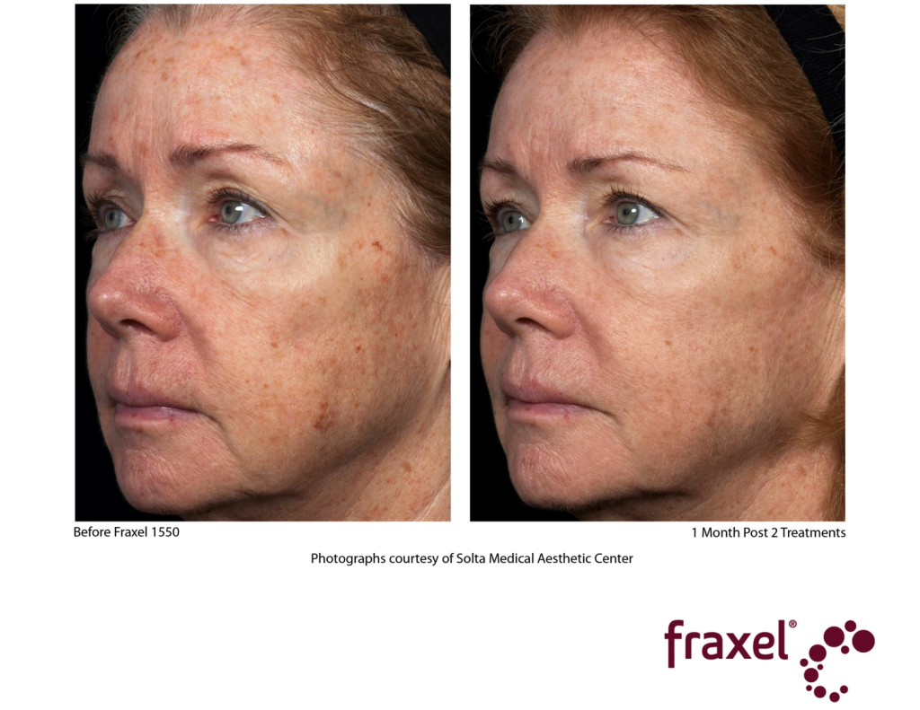 Fraxel Restore Aesthetics By Eileen Raleigh Nc