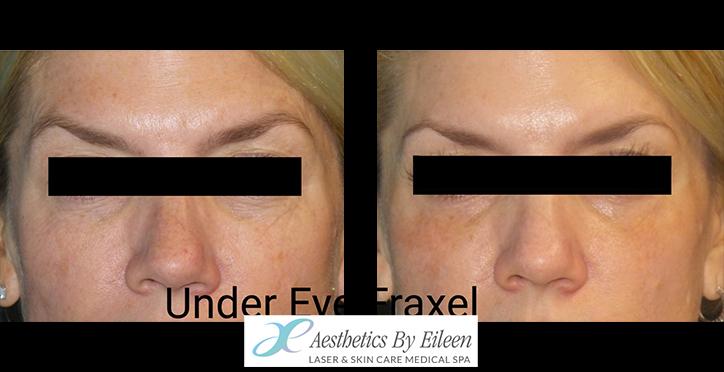 Fraxel under eye results