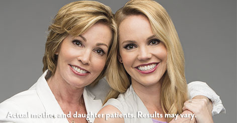 juvederm-raleigh-mother-daughter-before-after