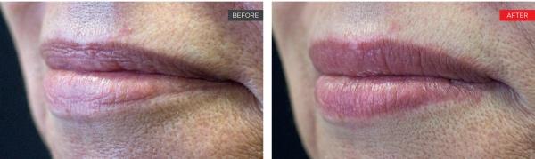 LipLase smooth lips results!