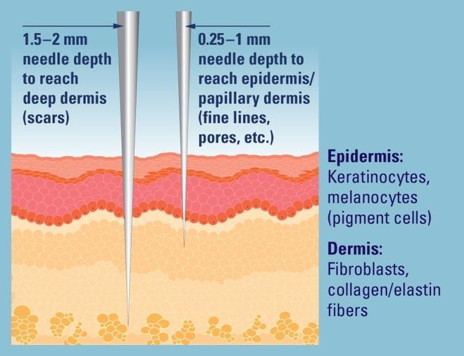 Microneedling - needle depth