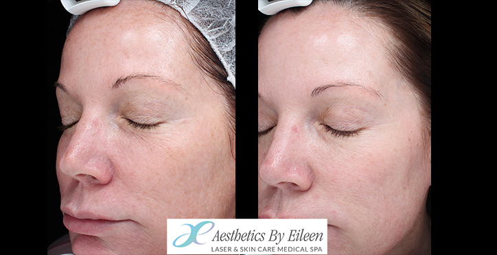 Real results with micro needling