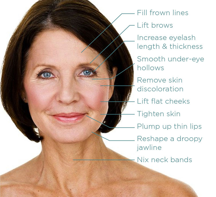 post menopause woman restylane treatment sites raleigh