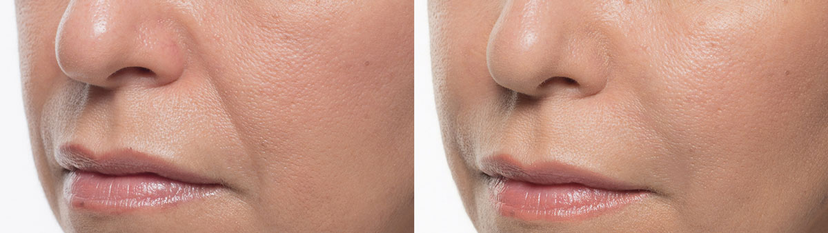 Raleigh before and after Bellafill Treatment