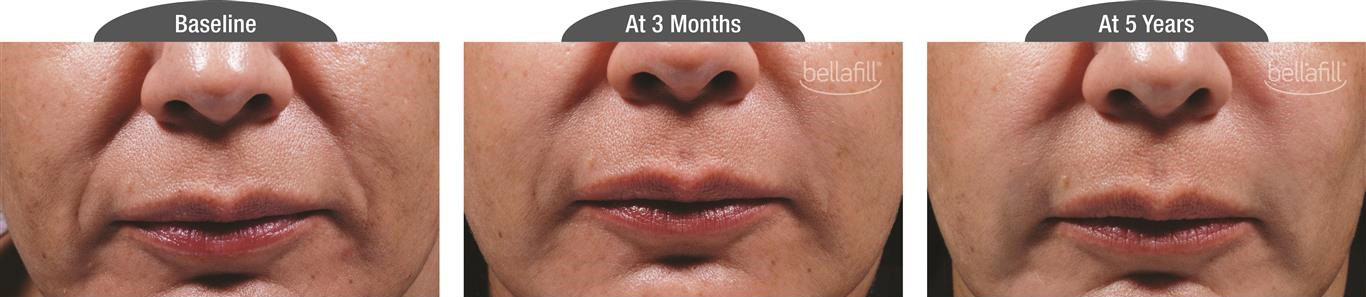 Bellafill patient before and after 5 years.