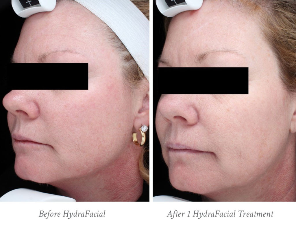 Raleigh HydraFacial Before & After