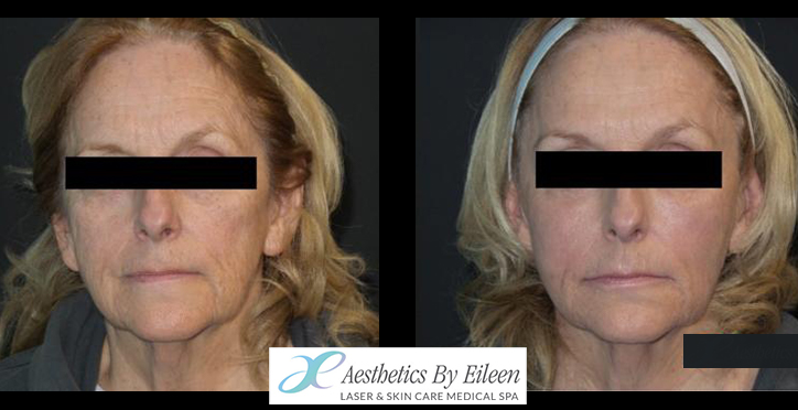 Sculptra and Fraxel results